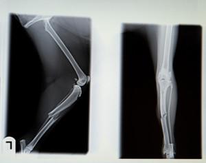 A laktózérzékenység kalciumhiányhoz vezethet. A kalcium hiány hiány csontritkulást okoz.