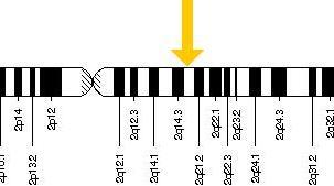 LCT gén képe. Mitől alakul ki a veleszületett laktázhiány?